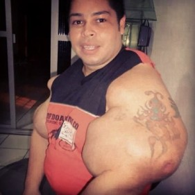 Synthol-Freak-deformed-400x400